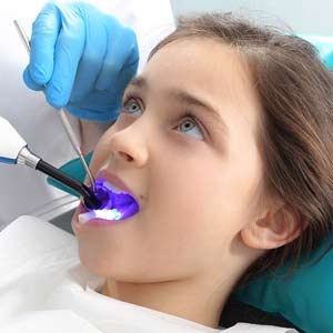 dental filling - Eugene, OR dentist