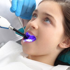 sealants Dentist in Eugene