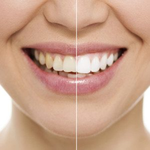 teeth whitening in Eugene, OR